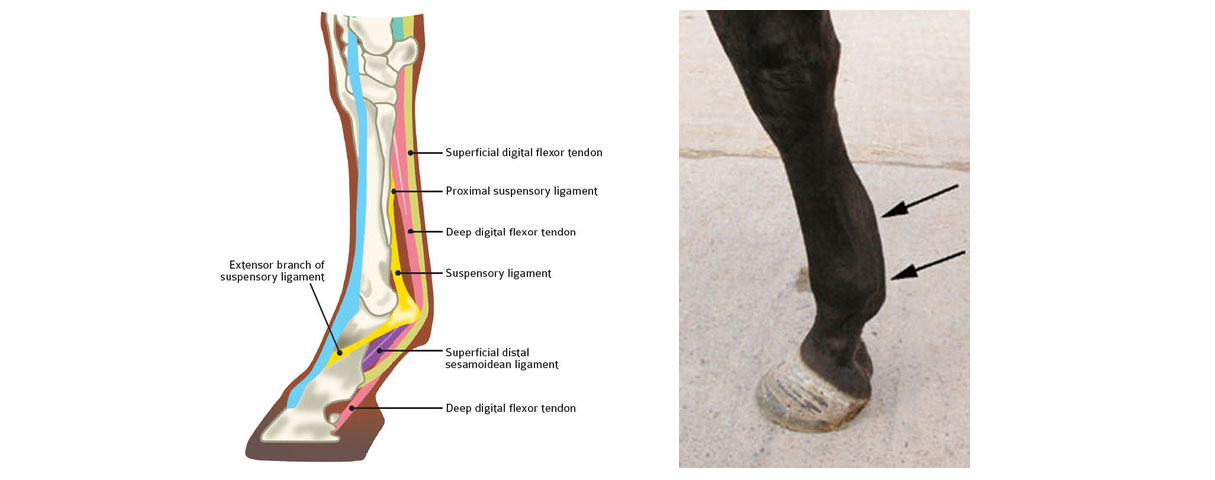 Common Tendon and Leg Injuries